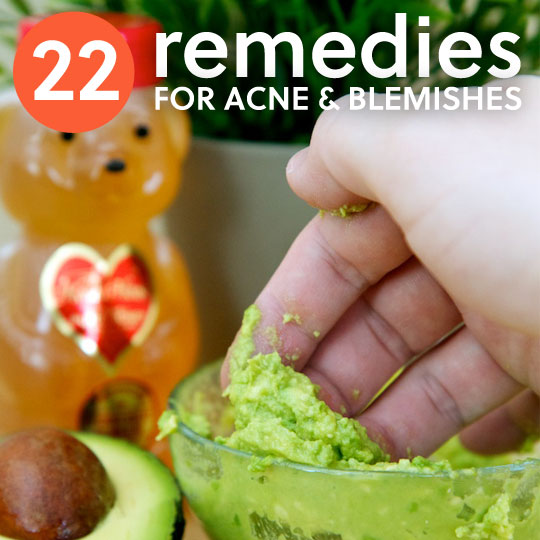 22 Natural Home Remedies for Acne & Pesky Pimples